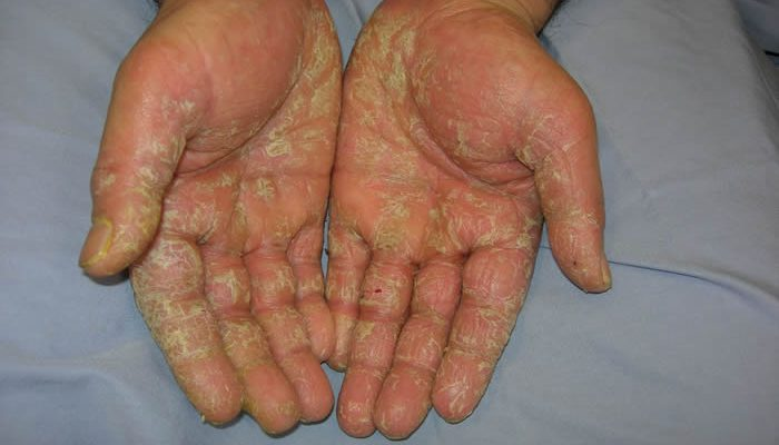 latex allergy symptoms